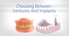 Choosing-Between-Dentures-And-Implants