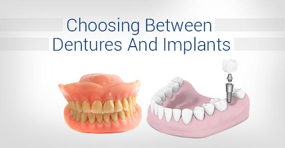 Choosing-Between-Dentures-And-Implants