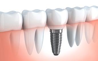 Implant Denture Procedure