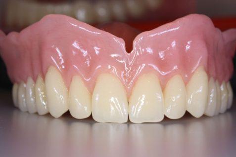 Immediate Denture Care